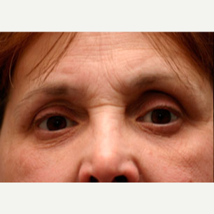 55-64 year old woman treated with Botox before 3604237