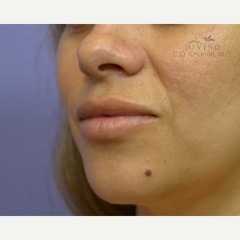 25-34 year old woman treated with Lip Implants after 3421304