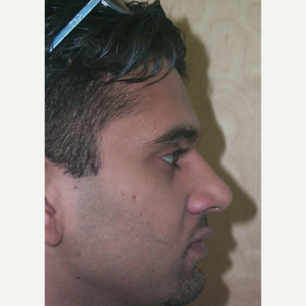25-34 year old man treated with Rhinoplasty after 2517839