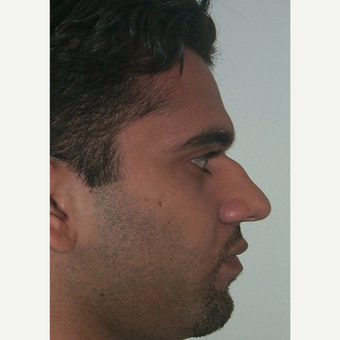 25-34 year old man treated with Rhinoplasty before 2517839