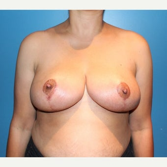 25-34 year old woman treated with Breast Reduction after 2657389