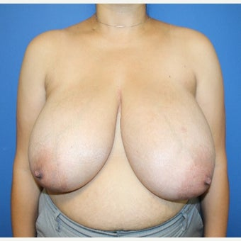 25-34 year old woman treated with Breast Reduction before 2657389