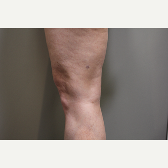 45-54 year old woman treated with Smart Lipo Precision to the Knees before 3706296