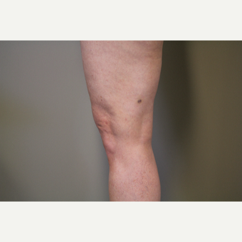 45-54 year old woman treated with Smart Lipo Precision to the Knees after 3706296