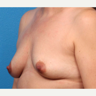 35-44 year old woman treated with Breast Augmentation before 3366929
