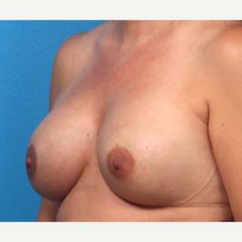 35-44 year old woman treated with Breast Augmentation after 3366929