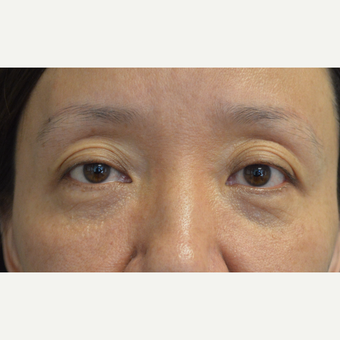 Asian woman, with hollow upper eyelids and excess folds, received Belotero filler injection. before 3447061