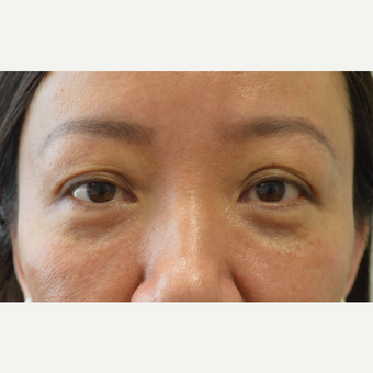 Asian woman, with hollow upper eyelids and excess folds, received Belotero filler injection. after 3447061