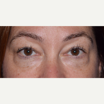 45-54 year old woman treated for Eye Bags with Blepharoplasty & Laser before 3649210
