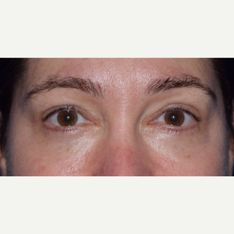 45-54 year old woman treated for Eye Bags with Blepharoplasty & Laser after 3649210