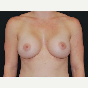 25-34 year old woman treated with Breast Implants after 3651189