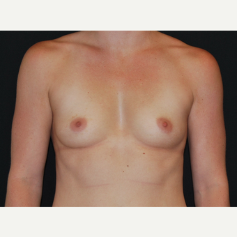 25-34 year old woman treated with Breast Implants before 3651189