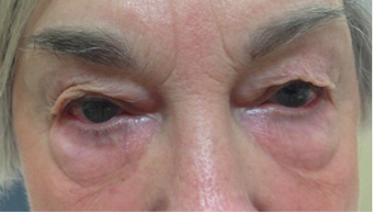 72 year old woman treated with Eye Bags Treatment before 3367458