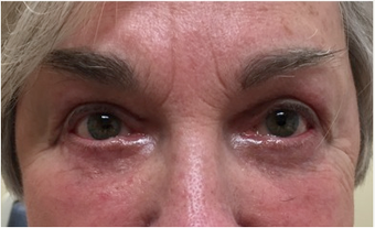 72 year old woman treated with Eye Bags Treatment after 3367458