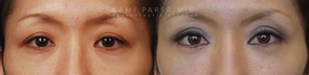 Before and After Upper and Lower Eyelid Blepharoplasty Surgery
