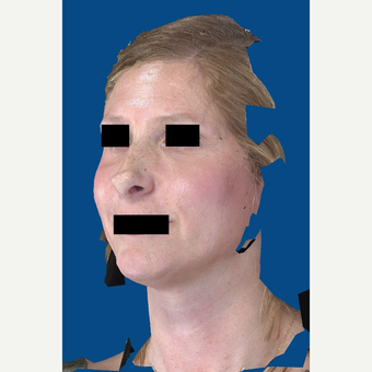 45-54 year old woman treated with Rhinoplasty before 3037582