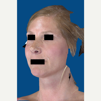 45-54 year old woman treated with Rhinoplasty after 3037582