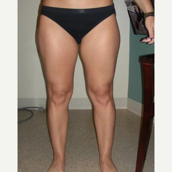 35-44 year old woman treated with Laser Liposuction before 2618720