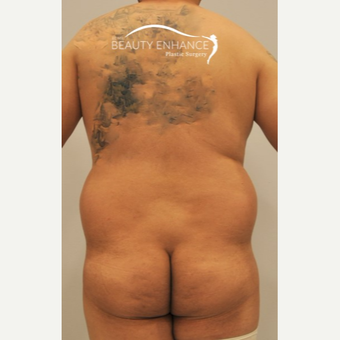Liposuction before 3377535