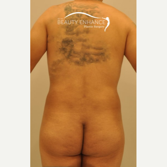 Liposuction after 3377535
