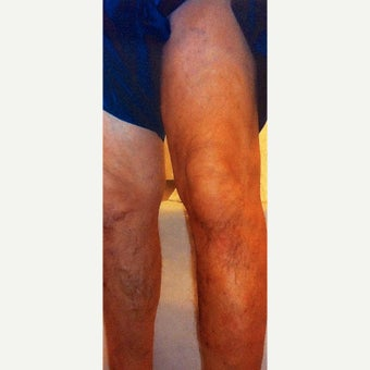 67 Year Old Man Treated for Sever Varicose Vein Disease