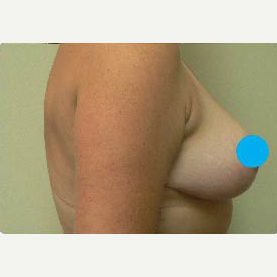 45-54 year old woman treated with Breast Lift after 3374848