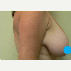 45-54 year old woman treated with Breast Lift before 3374848