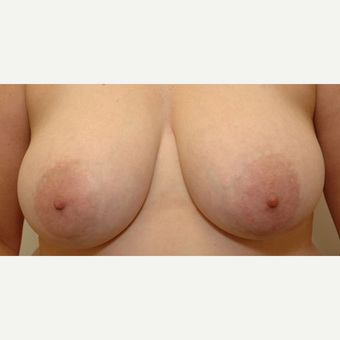 Breast Reduction before 3108949