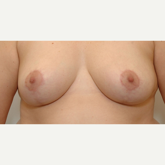 Breast Reduction after 3108949