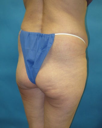 Butt augmentation Revision before 1420338