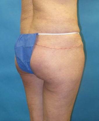 Butt augmentation Revision after 1420338