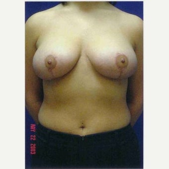 25-34 year old woman treated with Breast Reduction 1791273