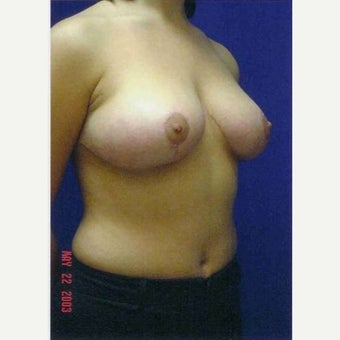 25-34 year old woman treated with Breast Reduction after 1791273