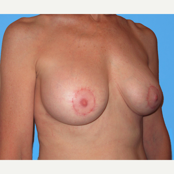Breast Lift with Implants after 3748730
