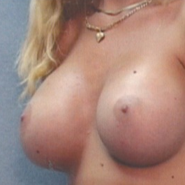 25-34 year old woman treated with Breast Implants after 1843179
