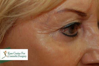 45-54 year old woman treated with Botox after 1630511