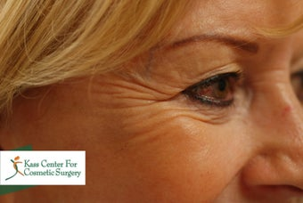 45-54 year old woman treated with Botox before 1630511