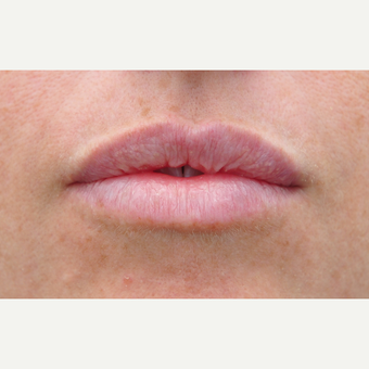 Natural lip augmentation with Juvederm after 3651300