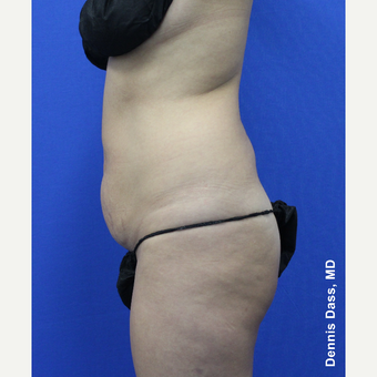 35-44 year old woman treated with Tummy Tuck before 3679930