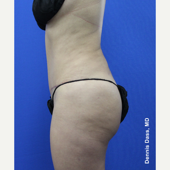 35-44 year old woman treated with Tummy Tuck after 3679930