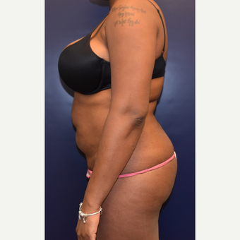25-34 year old woman treated with Liposuction before 3344486