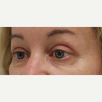 45-54 year old woman treated with Eyelid Surgery after 3259422