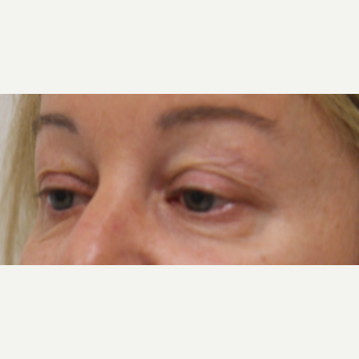 45-54 year old woman treated with Eyelid Surgery before 3259422