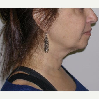 55-64 year old woman treated with Kybella after 2651770