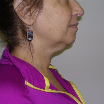 55-64 year old woman treated with Kybella before 2651770