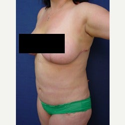45-54 year old woman treated with Mini Tummy Tuck after 2058406