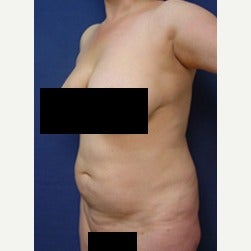 45-54 year old woman treated with Mini Tummy Tuck before 2058406