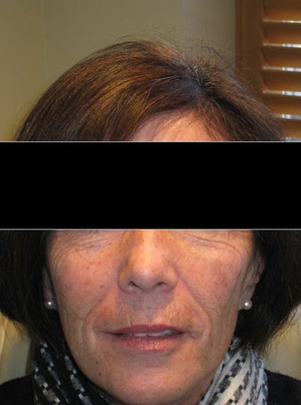 55-64 year old woman treated with Voluma after 1605038