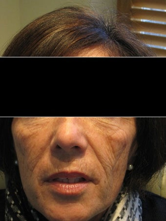 55-64 year old woman treated with Voluma before 1605038