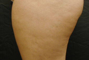 Cellulite Treatment - Cellulaze after 606625
